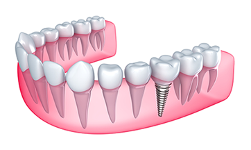 Dental Implants in Cary, NC